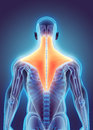 3D illustration of Trapezius. Royalty Free Stock Photo
