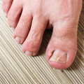 Damaged toenail foot closeup the thumb on the man s leg Royalty Free Stock Images