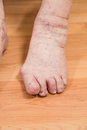 Damaged toes of a senior person Royalty Free Stock Photos