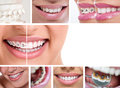 Dental braces lingual before and after Stock Image