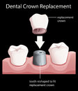 A dental crown replacement illustration of Royalty Free Stock Images