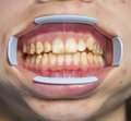 Dental fluorosis also termed mottled enamel is hypomineralization of tooth enamel caused by ingestion of excessive fluoride during Stock Images