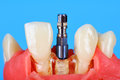 Dental implant implanted in jaw Royalty Free Stock Photo