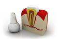 dental implant in jaw bone Royalty Free Stock Photo