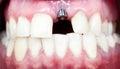 Dental implant Royalty Free Stock Photo