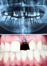 Dental implant a macro shot of in the oral cavity and its panoramic x ray Stock Images