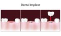 Dental implant procedure Royalty Free Stock Image