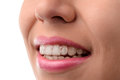 Dental medical care. Invisible braces Royalty Free Stock Photo