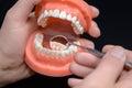 Dental model observation with dental mirror using Stock Images