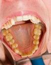 Dental photography Royalty Free Stock Photos