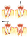 Dental root canal Stock Photos