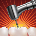 Dentist drilling tooth illustration of a shiny reflective silver drill an extremely painful Stock Images