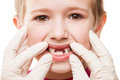 Dentist examining child teeth dental medicine and healthcare patient open mouth showing first baby milk or temporary fall out Stock Image