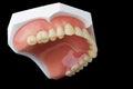 Denture Stock Image