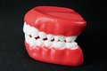 Denture model on black background Royalty Free Stock Photos
