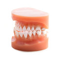 Dentures isolated on a white background Stock Image