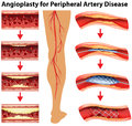 Diagram showing angioplasty for peripheral artery disease illustration Stock Photo