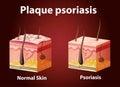 Diagram showing plaque psoriasis