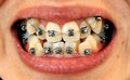 Diamond braces Royalty Free Stock Photo