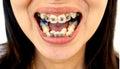 Diamond braces for teeth Royalty Free Stock Photo