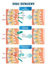 Disc surgery vector illustration. Diagram with back nerves and bones pain.