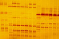 Dna fingerprint with indicator marks and yellow background Royalty Free Stock Photos