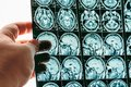 Doctor hand holds MRI brain scan or magnetic resonance image results Royalty Free Stock Photo