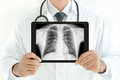 Doctor holding tablet pc with normal male chest x-ray image Royalty Free Stock Photo