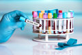 Doctor holding tube with text Blood test Royalty Free Stock Photo