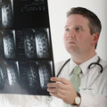 Doctor studying mri Stock Photography