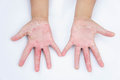 The Dry hands, peel, Contact dermatitis, fungal infections, Skin inf Royalty Free Stock Photo