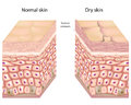 Dry skin Stock Images