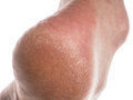 Dry skin on heel Royalty Free Stock Photo