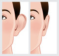 Ear pinning otoplasty illustration of before and after cosmetic surgery Royalty Free Stock Image