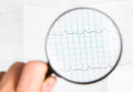 Ecg chart background and lenses Royalty Free Stock Photography