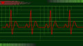 Ecg ekg electrical activity of the human heart on green graph Royalty Free Stock Photography