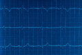 Ecg electrocardiogram photo of blue heart beats cardiogram Stock Photos