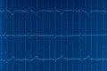ECG Electrocardiogram
