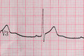 ECG Electrocardiography Royalty Free Stock Photo