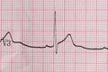 ECG Electrocardiography Royalty Free Stock Photo
