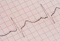 ECG graph Royalty Free Stock Image
