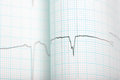 Ecg graph medical background for your use Royalty Free Stock Photos