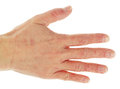 Eczema dermatitis on back of hand and fingers Stock Photos