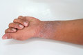 Eczema presents on the hand