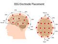 EEG electrode placement Stock Photos