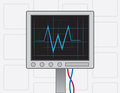 Ekg machine on with wires Royalty Free Stock Photos