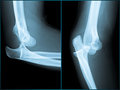 Elbow Xray Royalty Free Stock Image