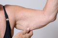 Elderly lady displaying the loose skin on her arm Royalty Free Stock Photo