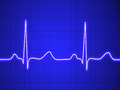 Electrocardiogram ecg graph pulse tracing on blue Stock Image