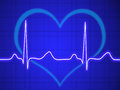 Electrocardiogram ecg graph pulse tracing on blue Stock Images